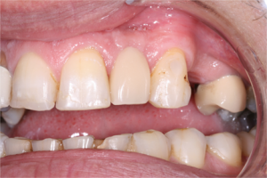 dental-implant2