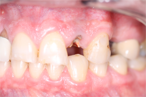 dental-implants1